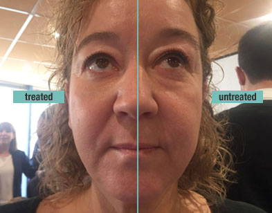 remescar-eye-bags-dark-circles-before-and-after-1.jpg