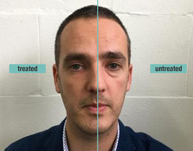 remescar-eye-bags-dark-circles-before-and-after-2.jpg